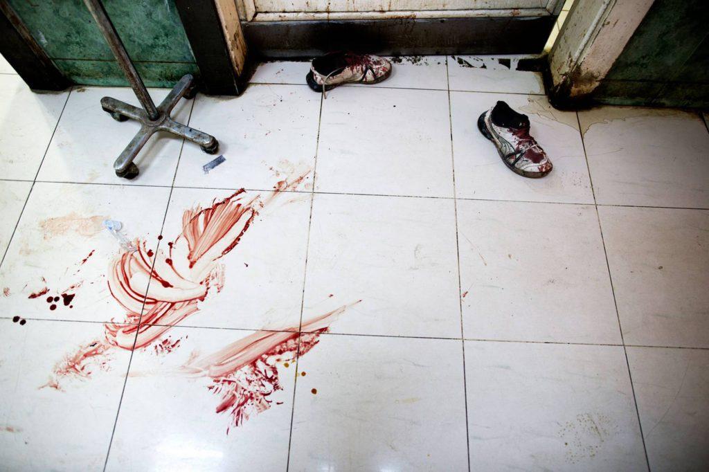 Golvet på Dar al-Shifa-sjukhuset är täckt av blod. Ett par blodiga gympaskor står utanför operationsrummet. Foto: NICLAS HAMMARSTRÖM