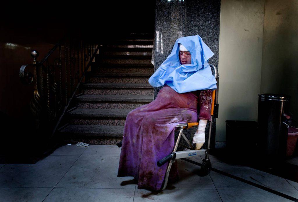 Den gravida kvinnan har skadats i en granatattack. Nu sitter hon avsvimmad på sjukhuset och väntar på vård. Foto: NICLAS HAMMARSTRÖM